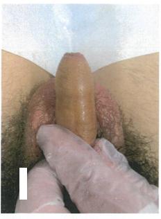 1 仮性包茎(軽い絞扼あり)勃起時に軽い締め付けを感じていた 術前正面