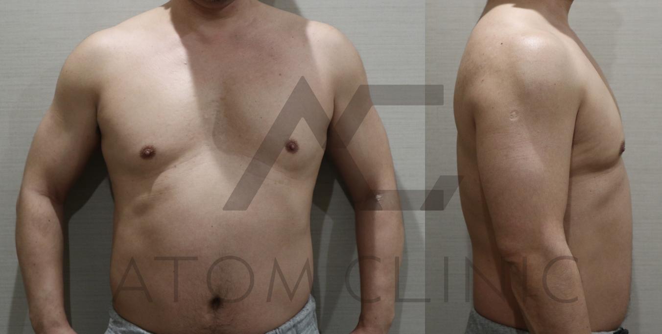 1  age47 当院オリジナルコース2ヶ月途中経過 術前正面
