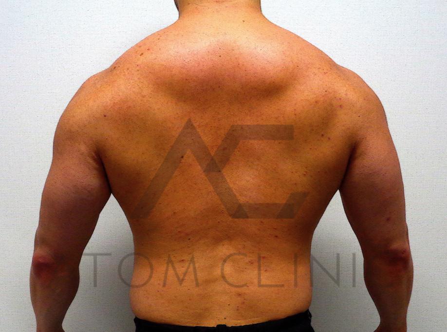 B-1 age37   筋肉量 59.6kg → 68.5kg⬆️ (total4ヶ月) 術後正面