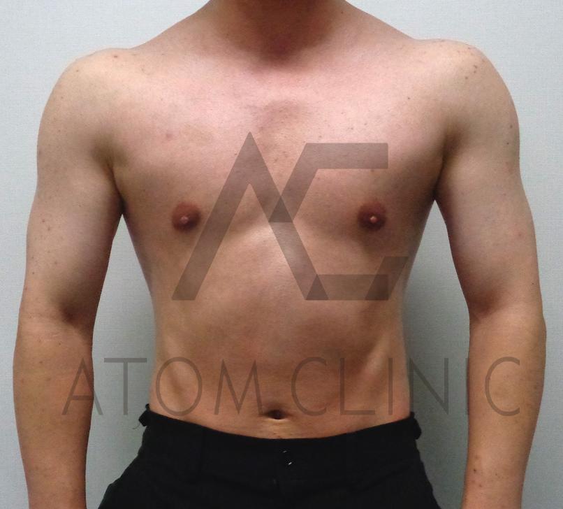 C-1 テストステロン初心者 10週経過 術後正面
