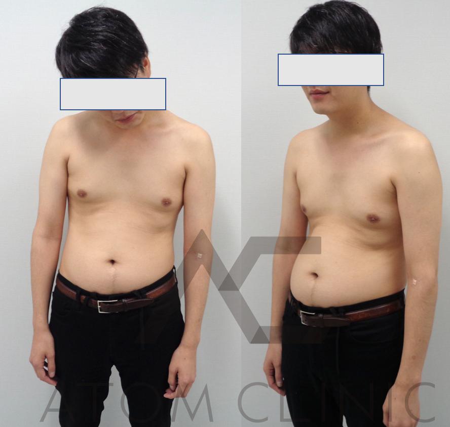 caseD-1 テストステロン 33歳 身長179㎝ 3ヶ月経過  Before After  筋トレ(週1)初心者 術前正面