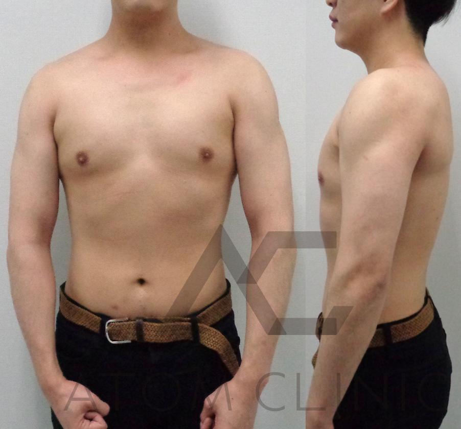 caseD-1 テストステロン 33歳 身長179㎝ 3ヶ月経過  Before After  筋トレ(週1)初心者 術後正面
